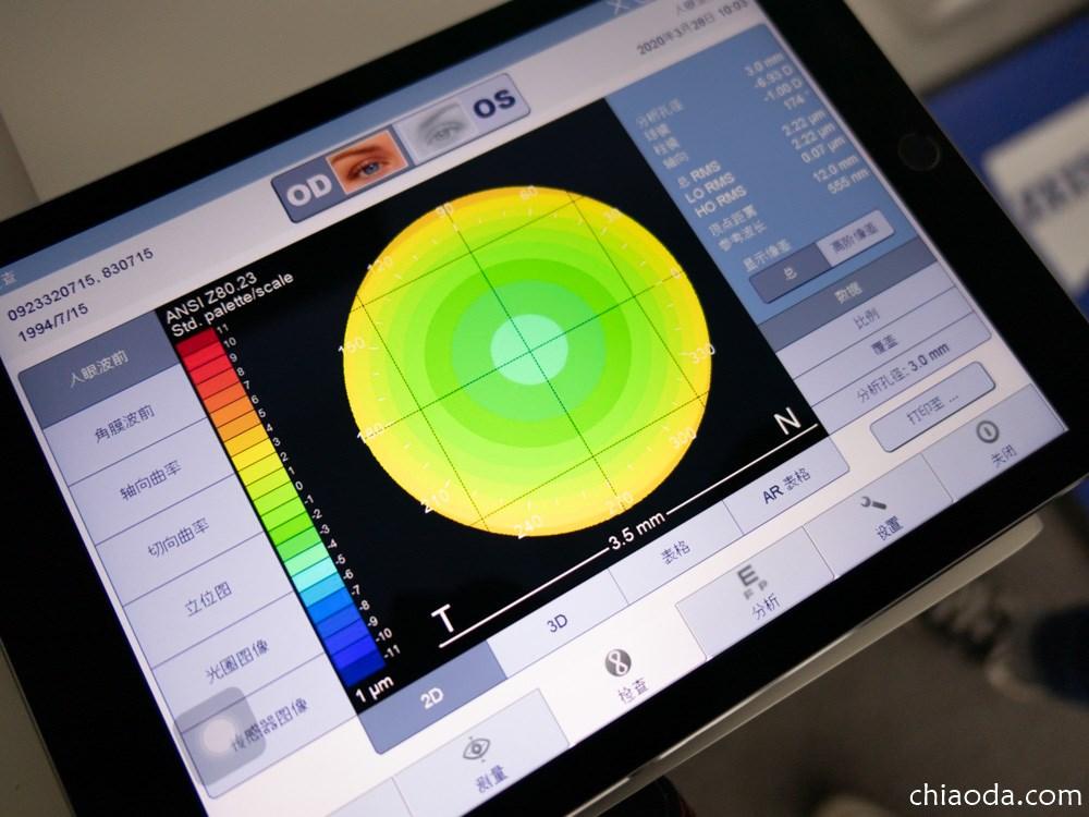彰化視康佳眼鏡行 蔡司前導波像差檢測儀 ZEUSS I Profiler plus